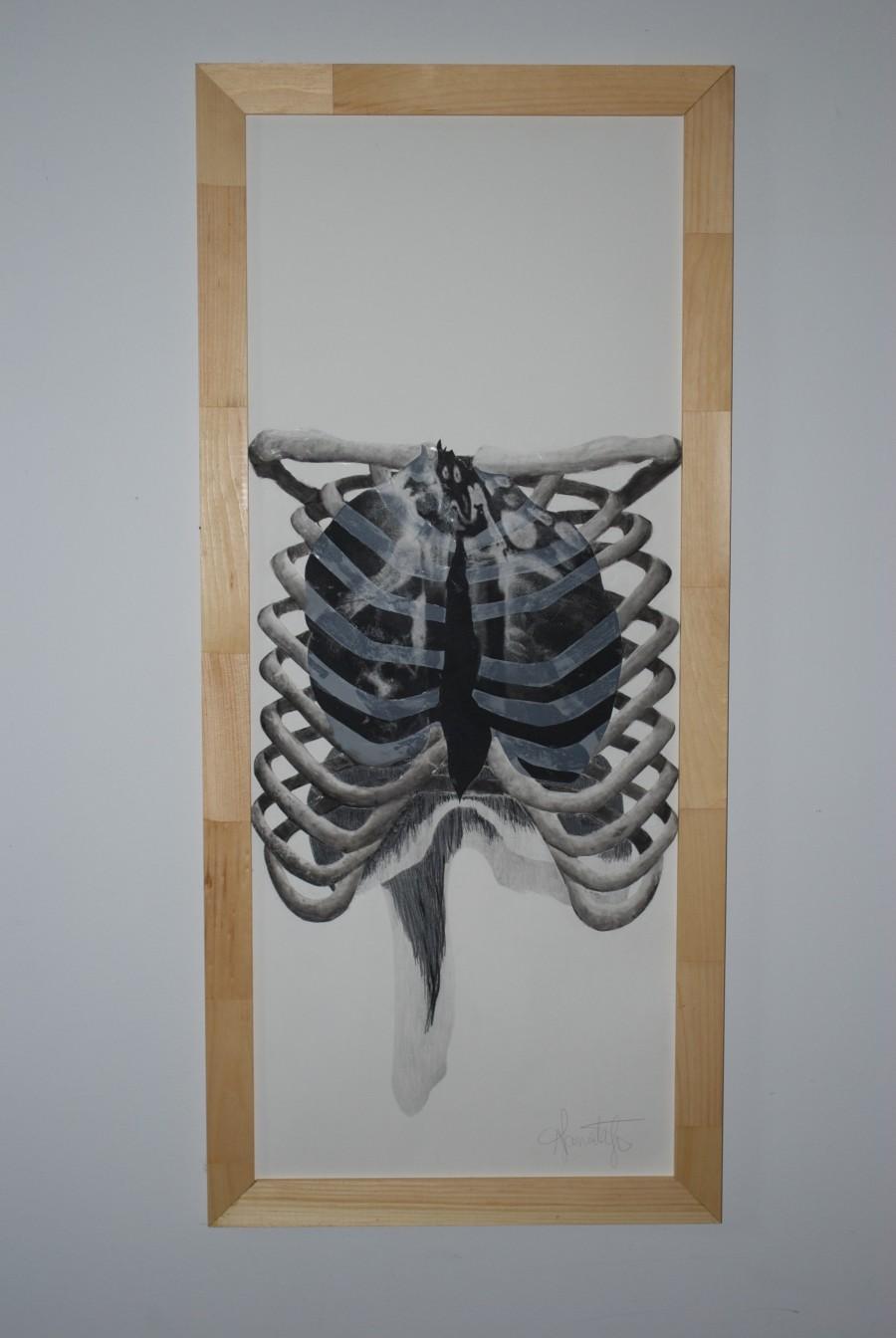 cage-thoracique-et-diaphragme